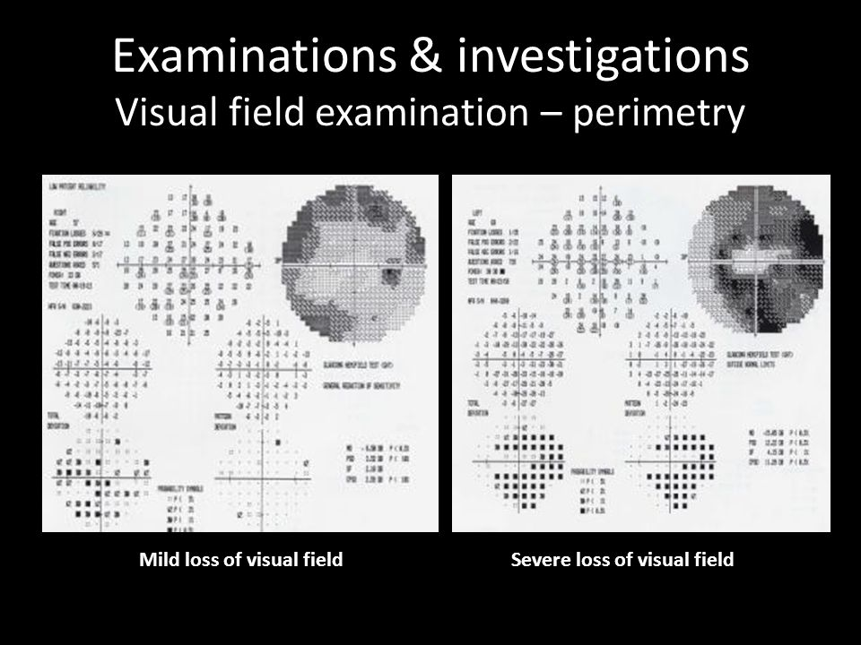Examinations & investigations Visual field examination – perimetry