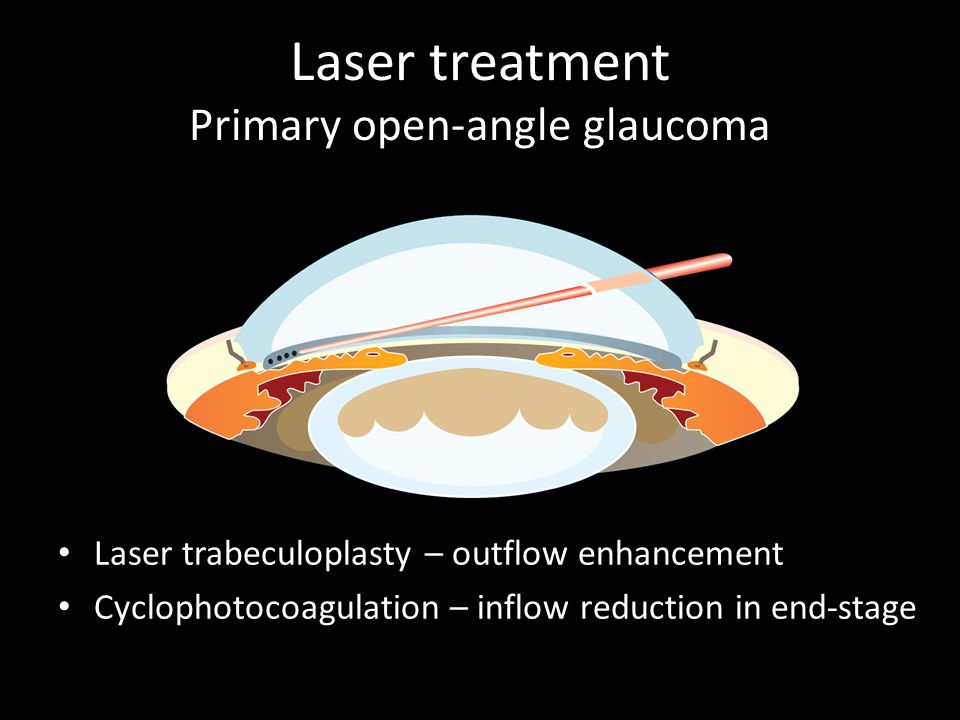 Laser treatment Primary open-angle glaucoma