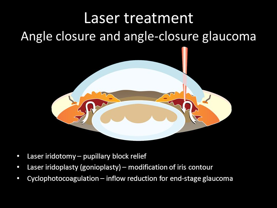 Laser treatment Angle closure and angle-closure glaucoma