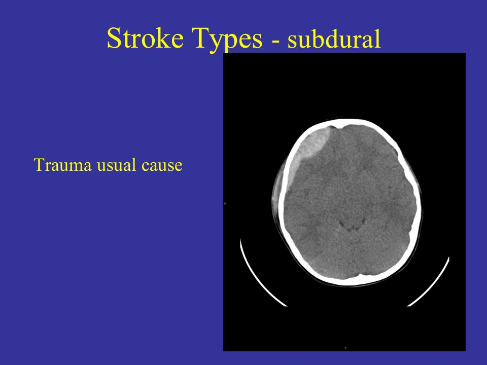 Stroke Types - subdural