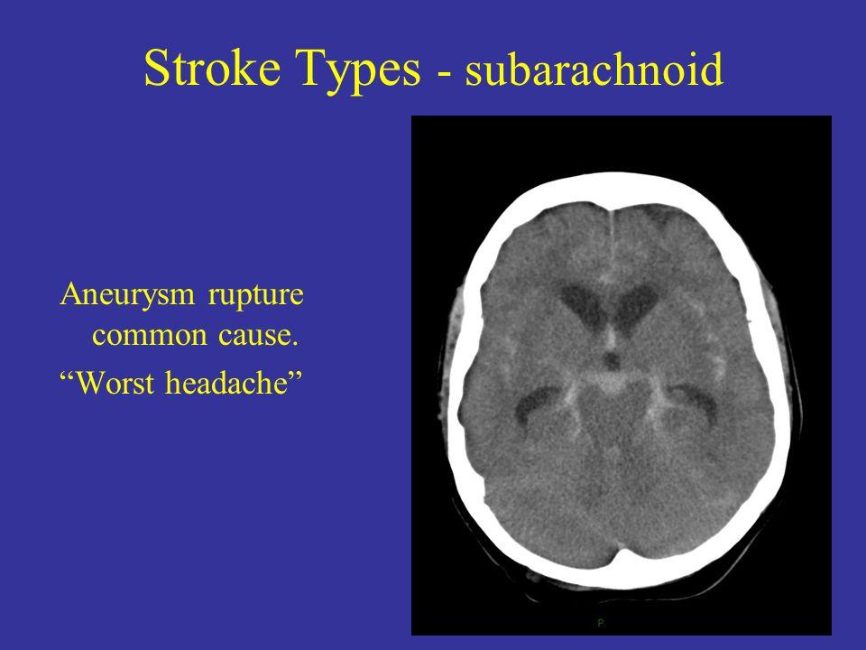 Stroke Types - subarachnoid