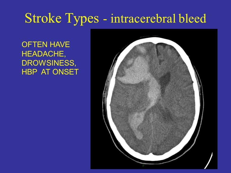 Stroke Types - intracerebral bleed
