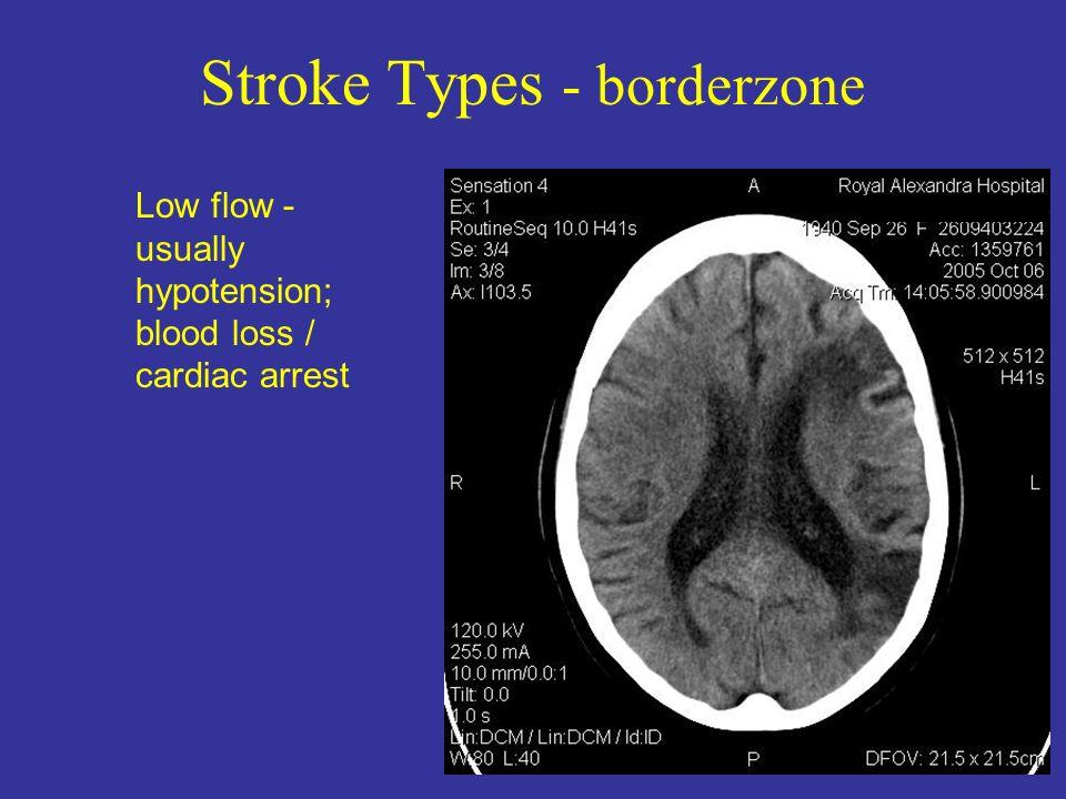 Stroke Types - borderzone