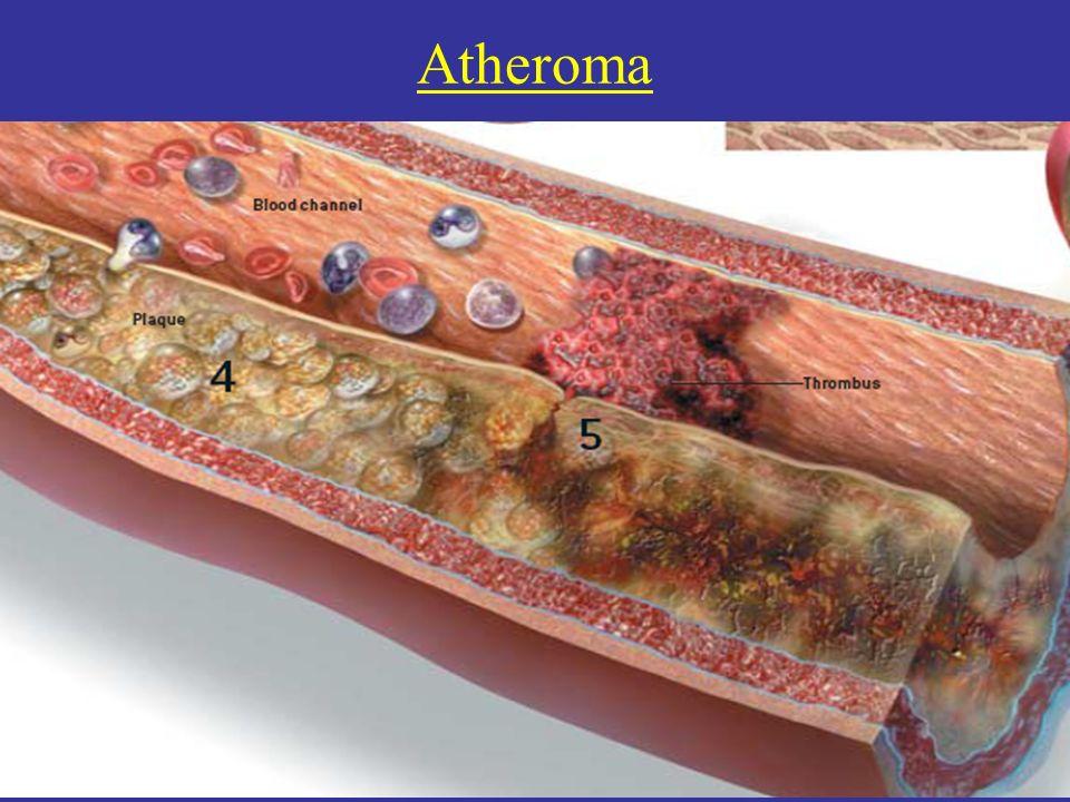 Atheroma