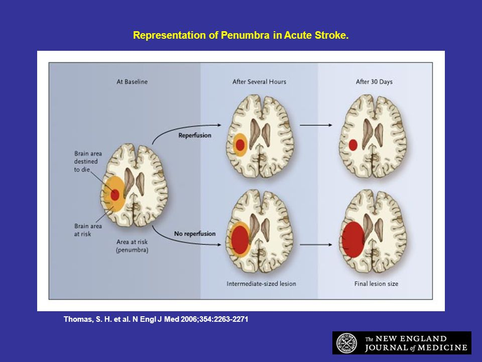 Representation of Penumbra in Acute Stroke.