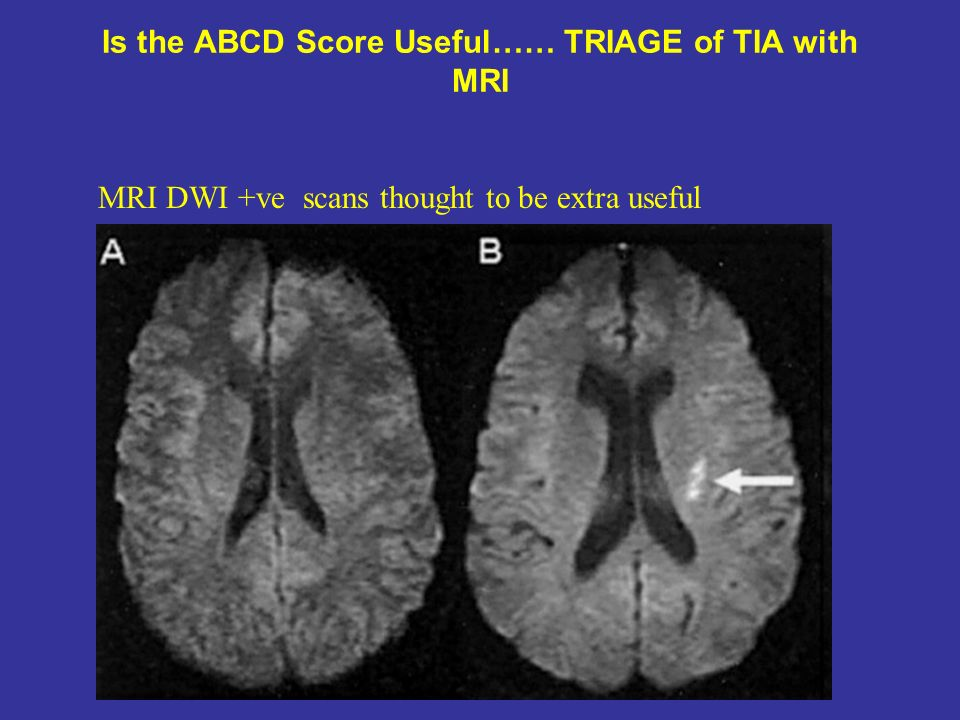 Is the ABCD Score Useful…… TRIAGE of TIA with MRI