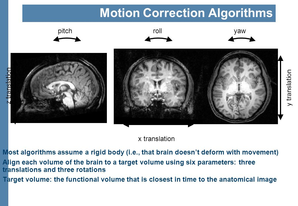 Head Motion: Good, Bad,… Slide from Duke course