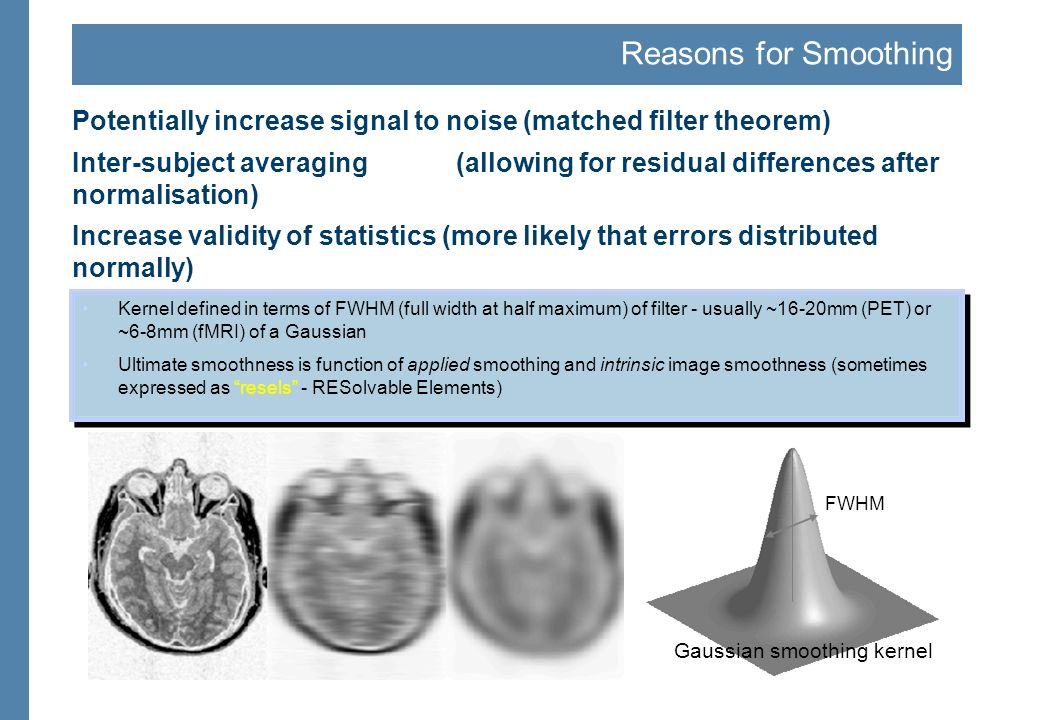 Overview fMRI time-series Statistical Parametric Map Smoothing kernel