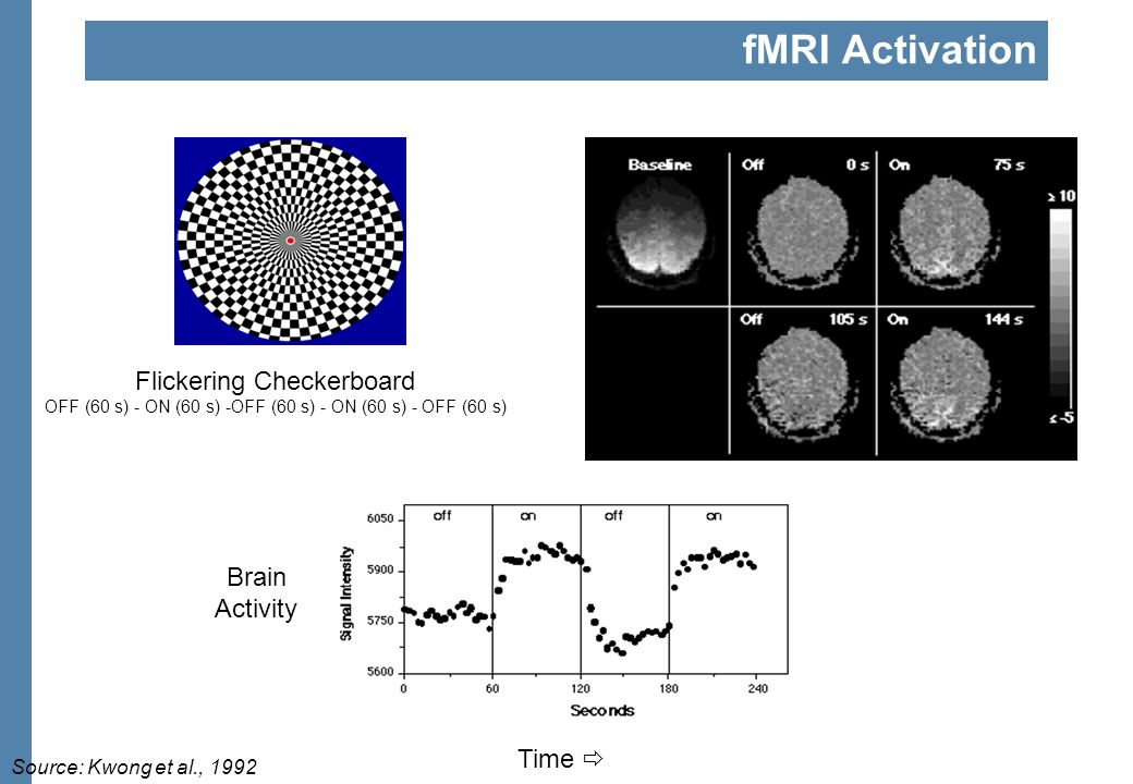 fMRI Experiment Stages: Prep