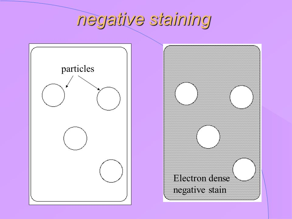 negative staining particles Electron dense negative stain
