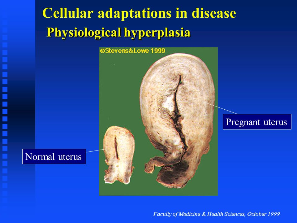 Physiological hyperplasia