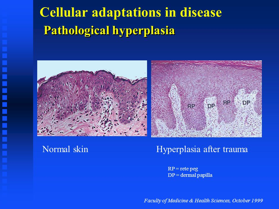 Pathological hyperplasia