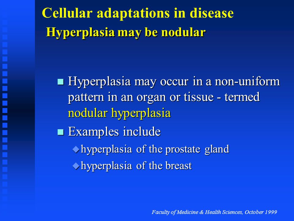 Hyperplasia may be nodular