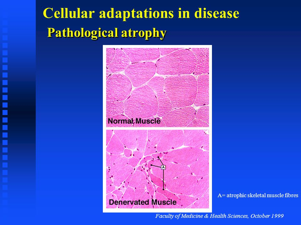Pathological atrophy A= atrophic skeletal muscle fibres