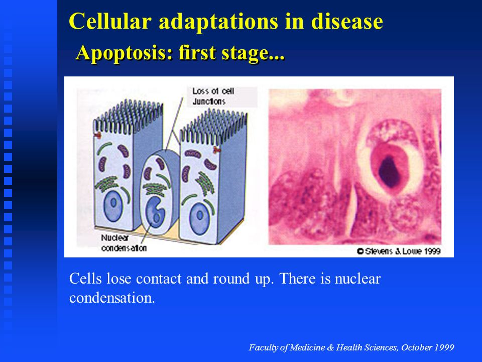 Apoptosis: first stage...