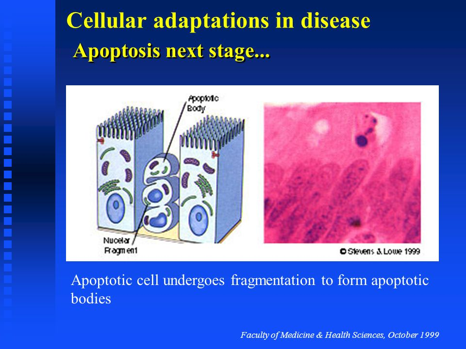 Apoptosis next stage... Apoptotic cell undergoes fragmentation to form apoptotic bodies