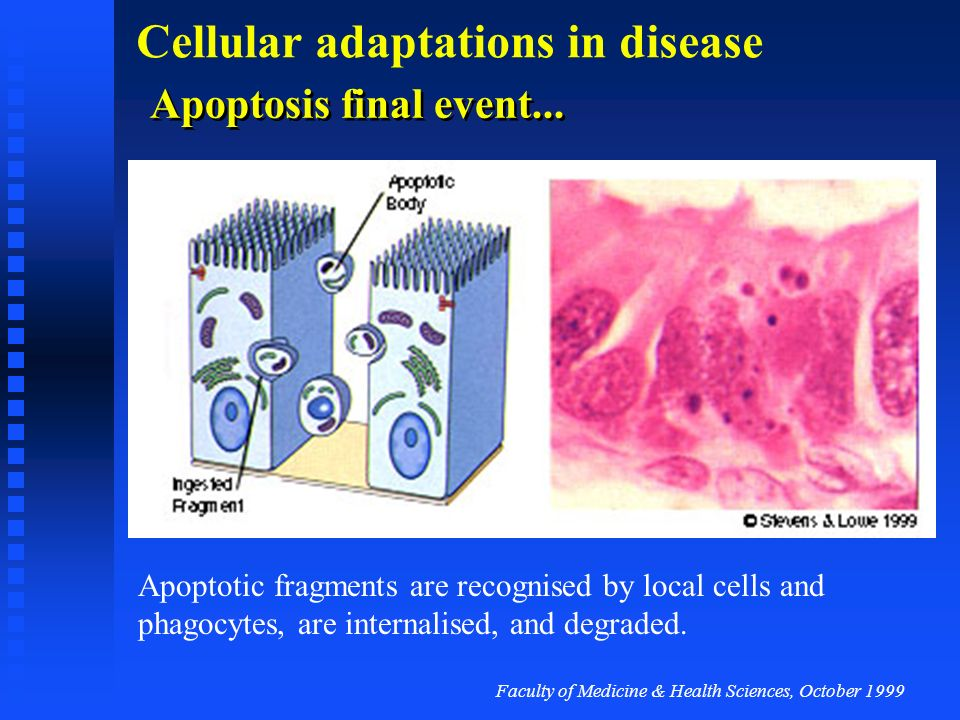Apoptosis final event...