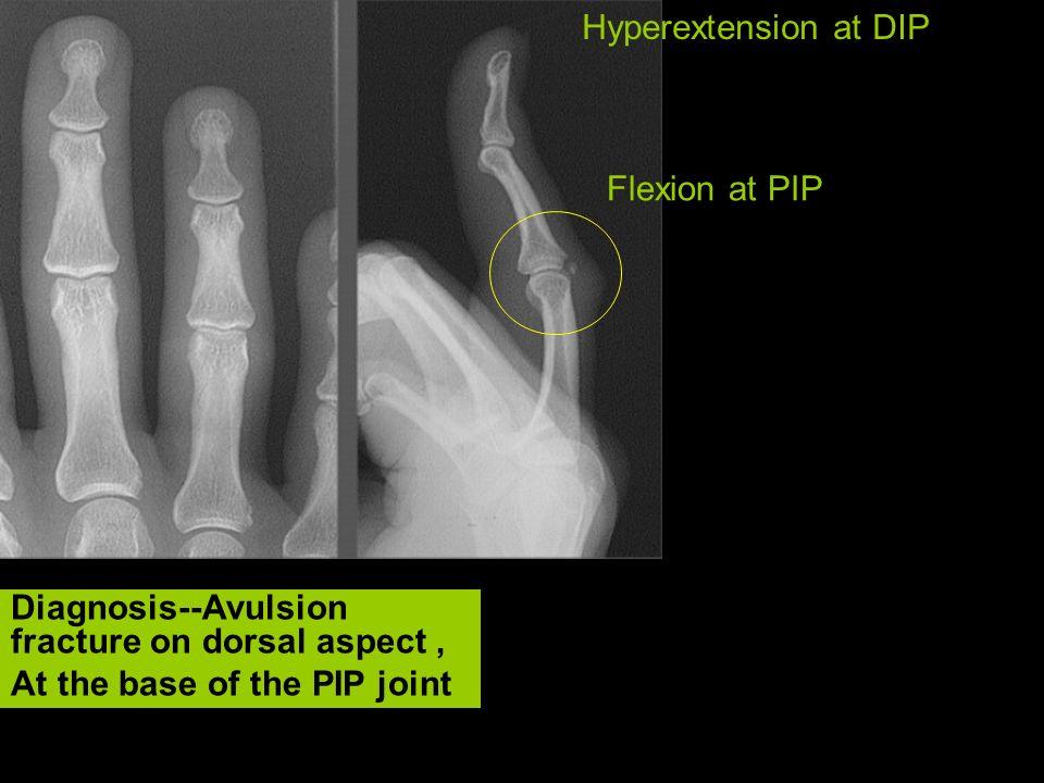 Hyperextension at DIP Flexion at PIP.