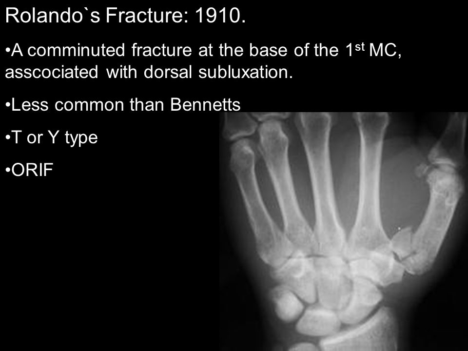 Rolando`s Fracture: 1910. A comminuted fracture at the base of the 1st MC, asscociated with dorsal subluxation.