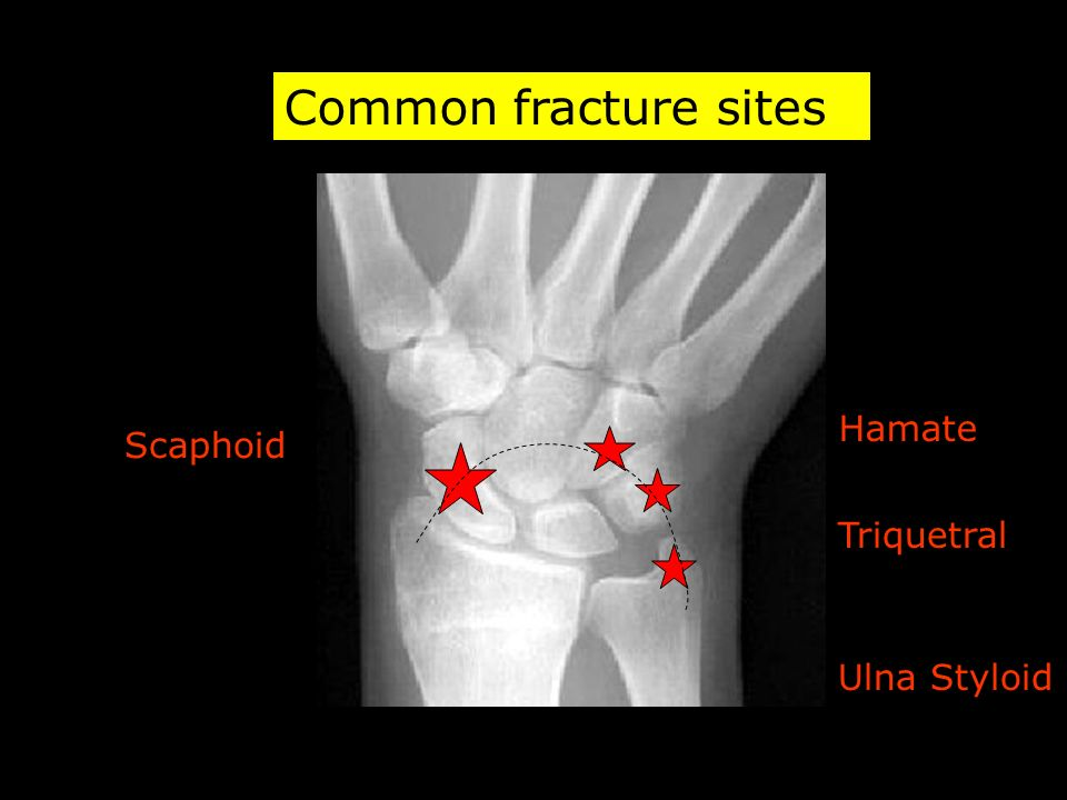 Common fracture sites Hamate Scaphoid Triquetral Ulna Styloid