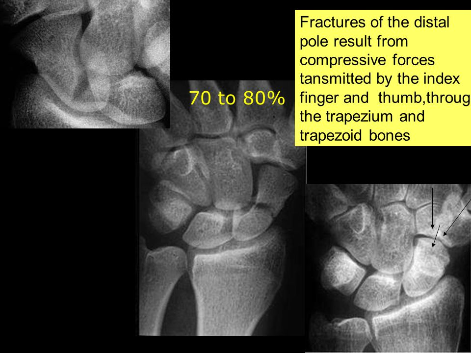 Fractures of the distal pole result from compressive forces tansmitted by the index finger and thumb,through the trapezium and trapezoid bones