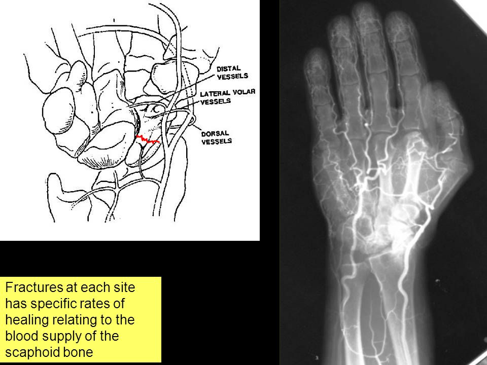 The scaphoid has a very poor blood supply
