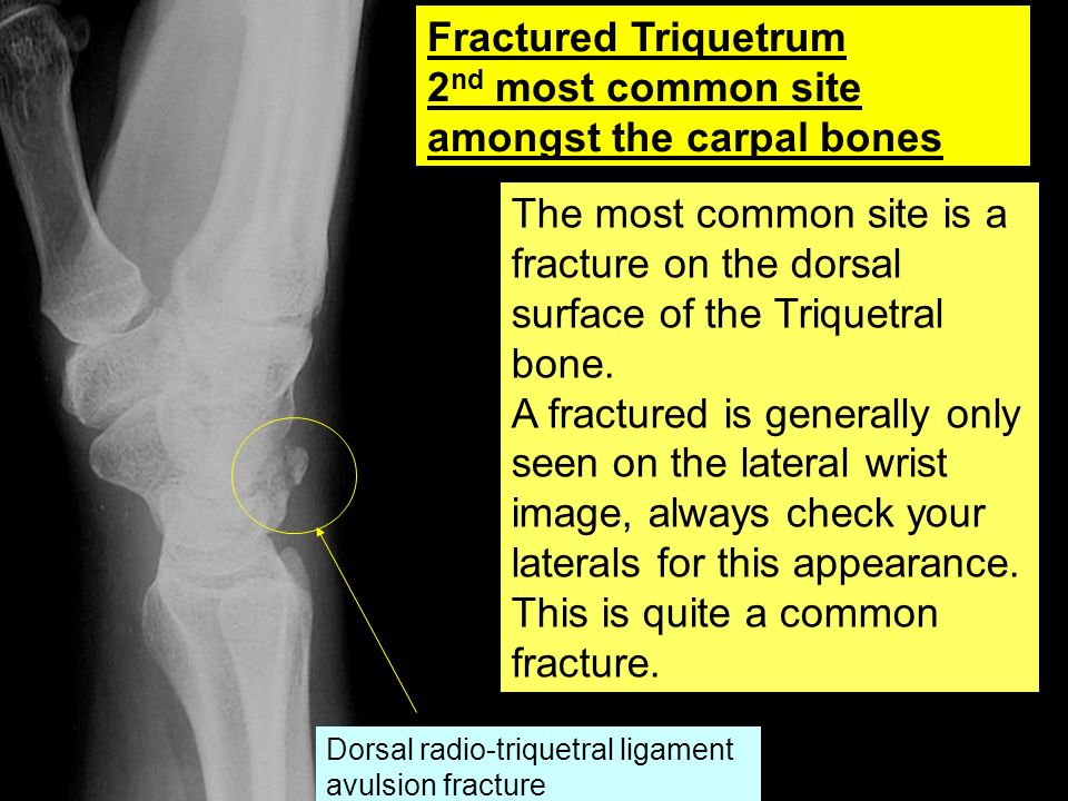 2nd most common site amongst the carpal bones
