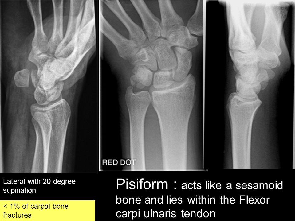 Pisiform : acts like a sesamoid bone and lies within the Flexor carpi ulnaris tendon