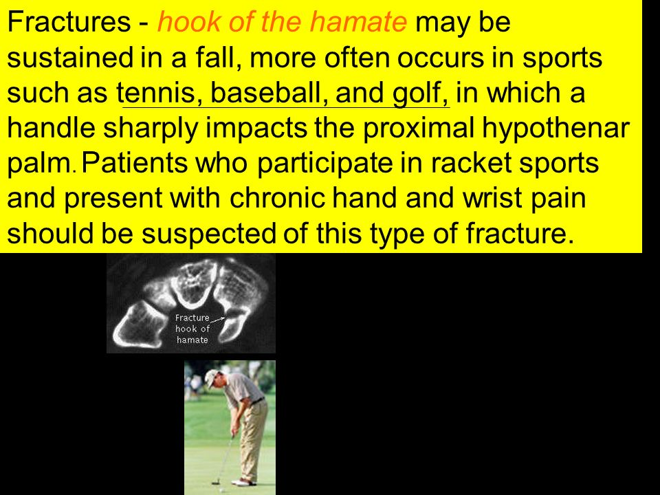 Fractures - hook of the hamate may be sustained in a fall, more often occurs in sports such as tennis, baseball, and golf, in which a handle sharply impacts the proximal hypothenar palm.