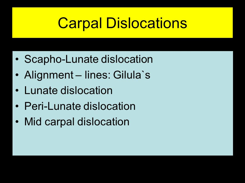 Carpal Dislocations Scapho-Lunate dislocation