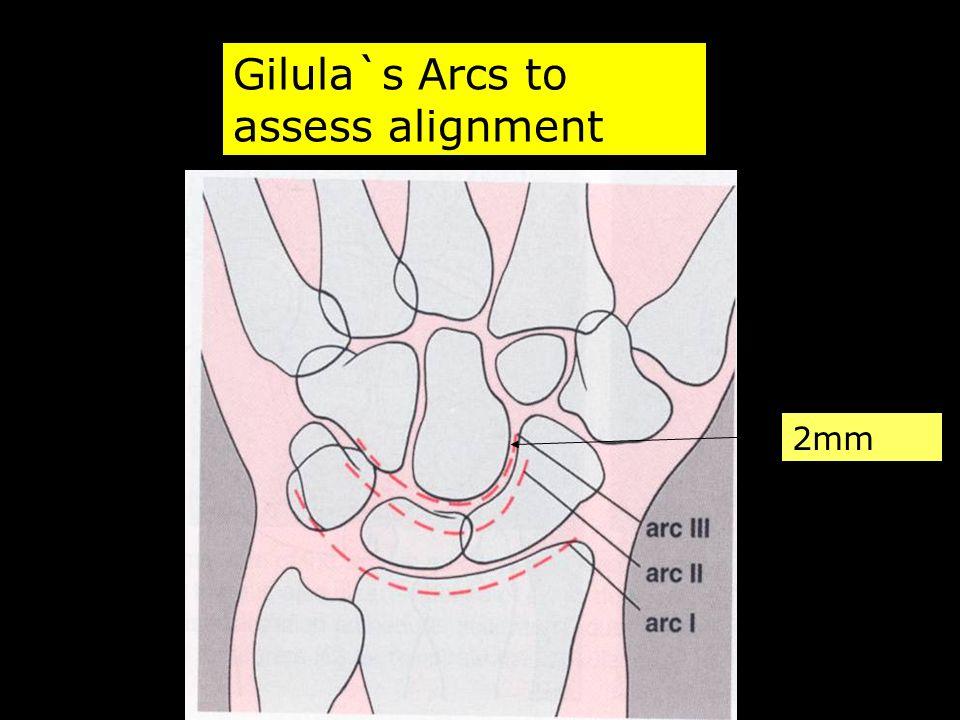 Gilula`s Arcs to assess alignment