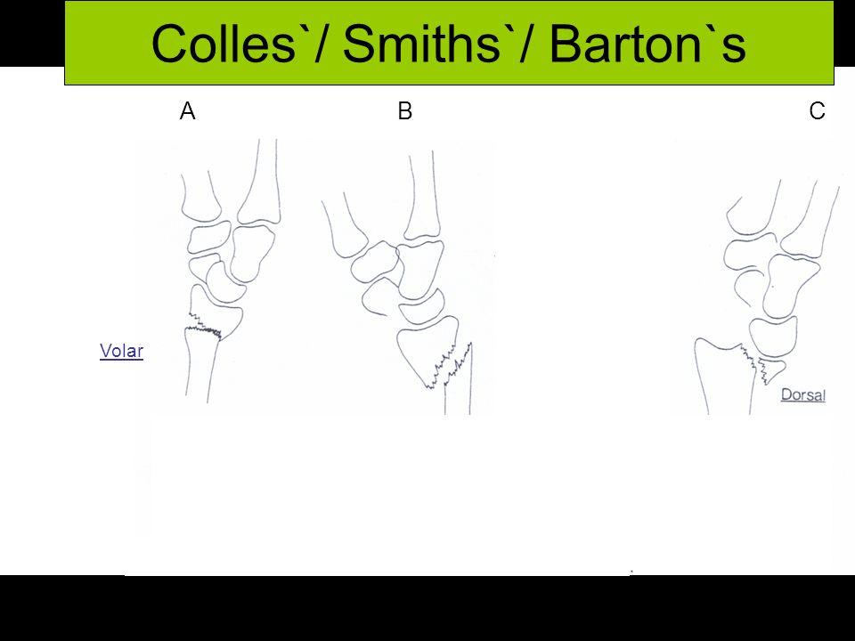 Colles`/ Smiths`/ Barton`s