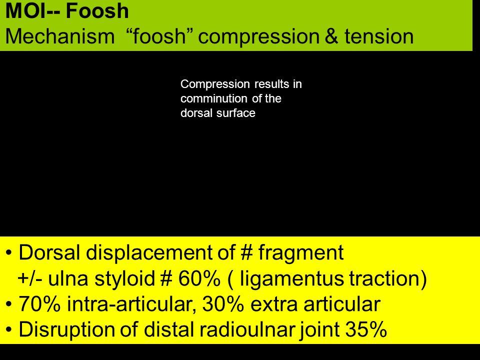 Mechanism foosh compression & tension