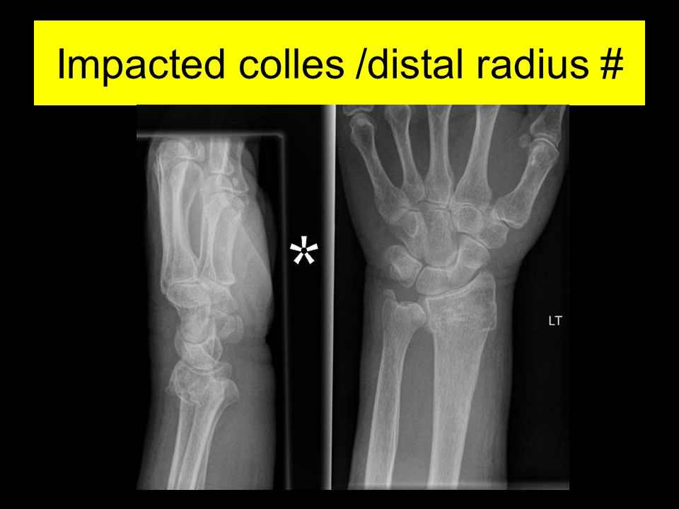 fractures from hand to elbow ppt video online download
