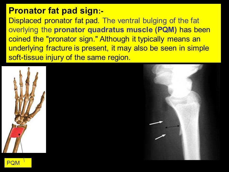 Pronator fat pad sign:-