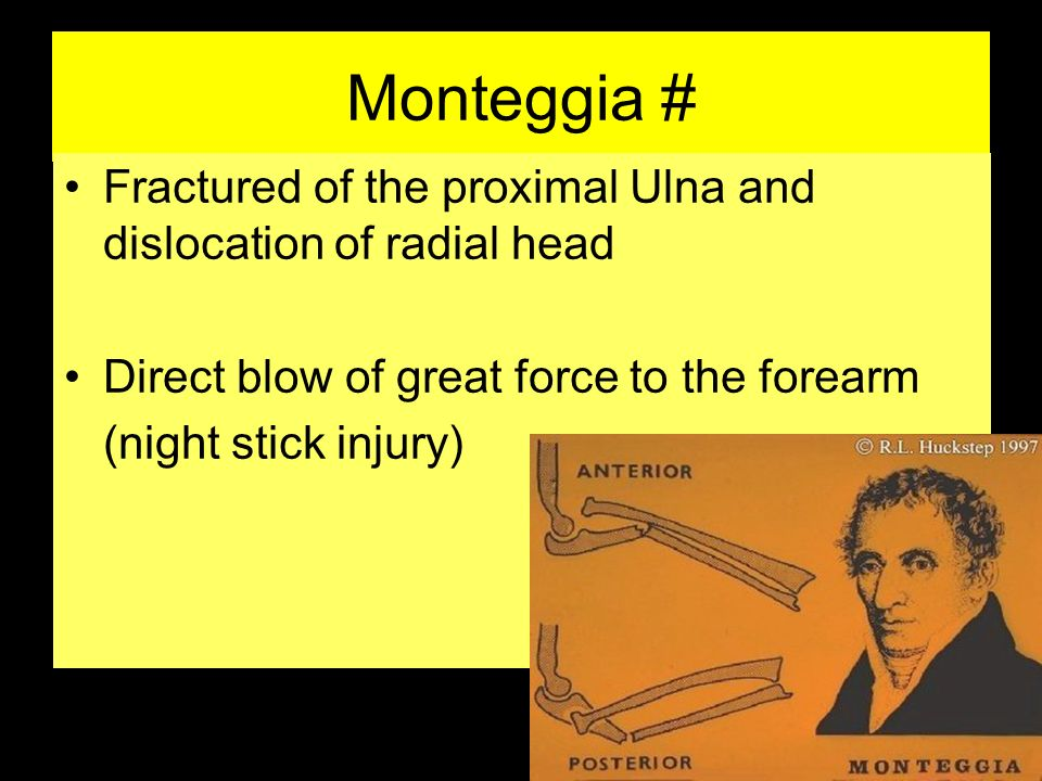 Monteggia # Fractured of the proximal Ulna and dislocation of radial head. Direct blow of great force to the forearm.