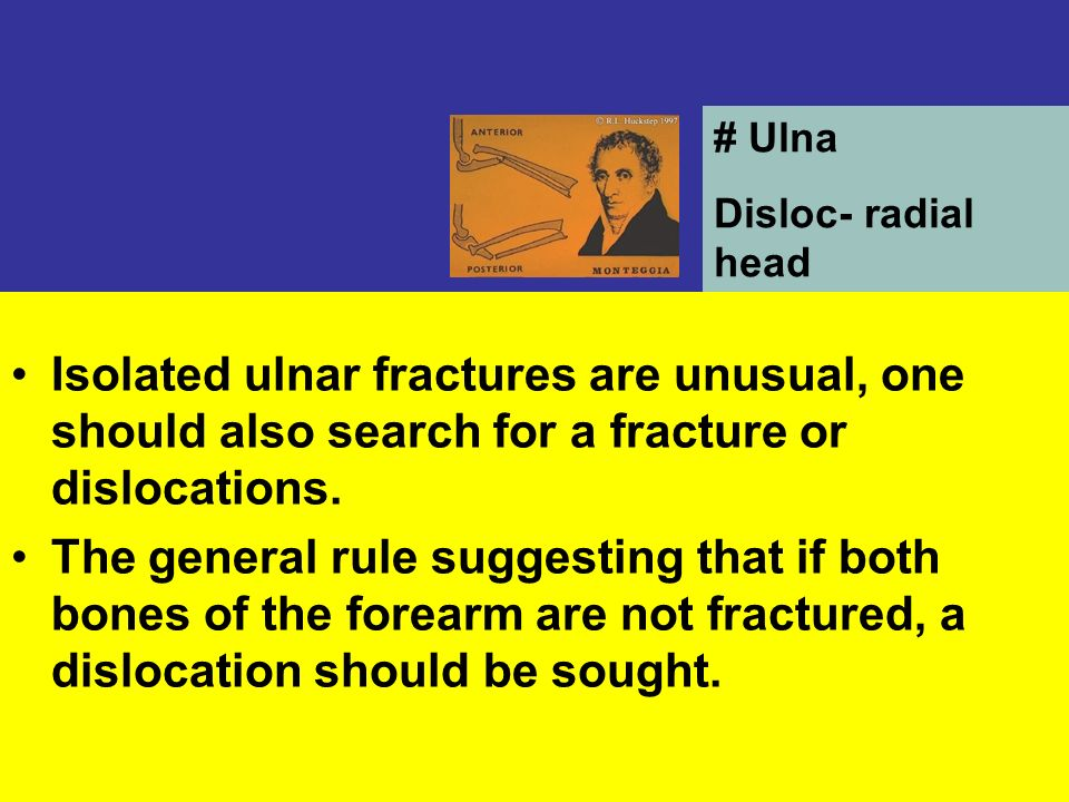 # Ulna Disloc- radial head. Isolated ulnar fractures are unusual, one should also search for a fracture or dislocations.