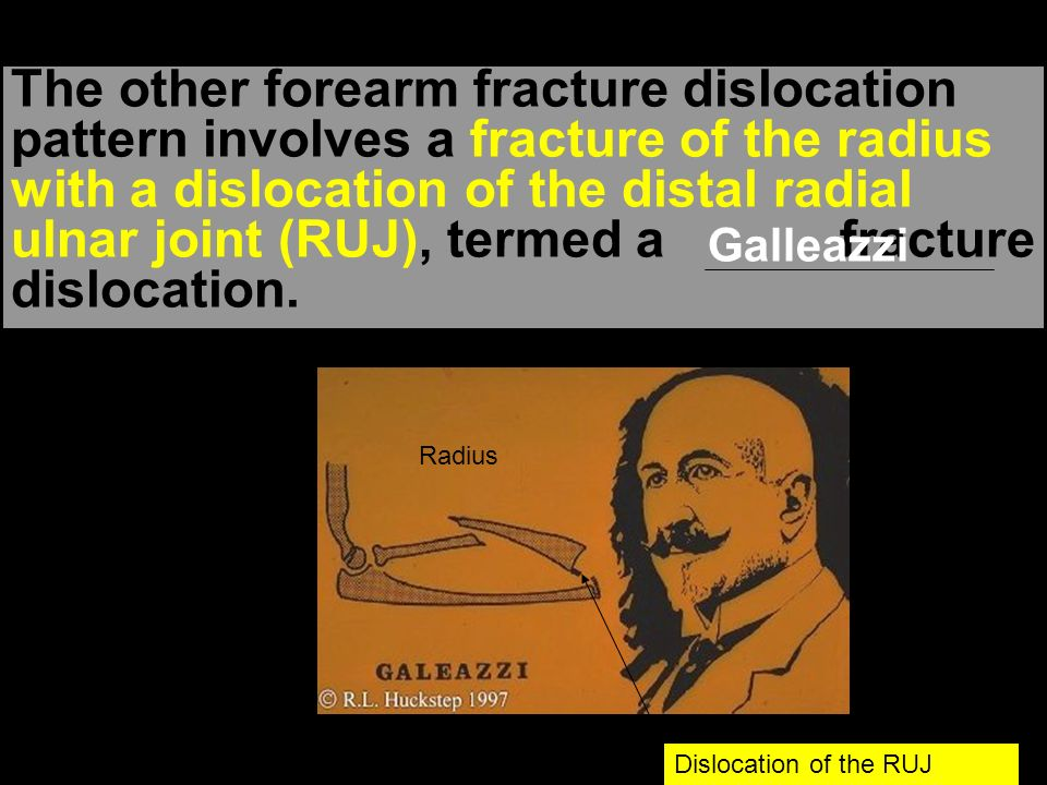 The other forearm fracture dislocation pattern involves a fracture of the radius with a dislocation of the distal radial ulnar joint (RUJ), termed a fracture dislocation.