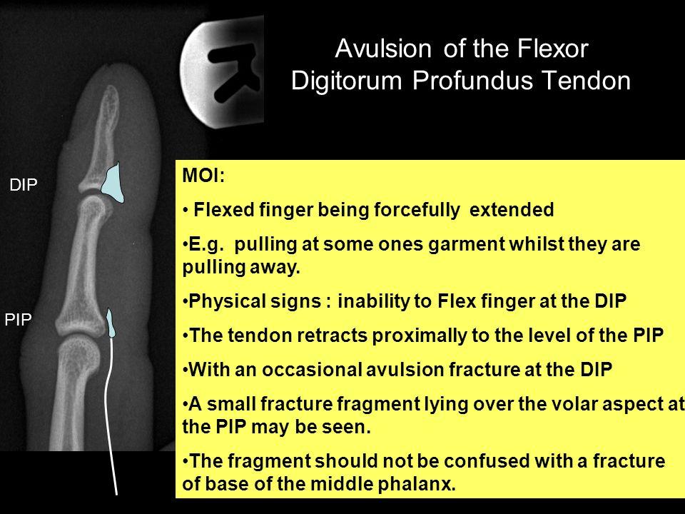 Avulsion of the Flexor Digitorum Profundus Tendon