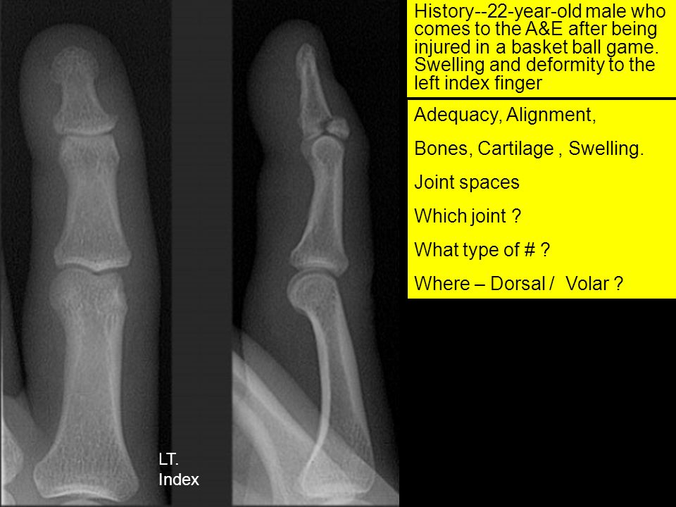 Bones, Cartilage , Swelling. Joint spaces Which joint