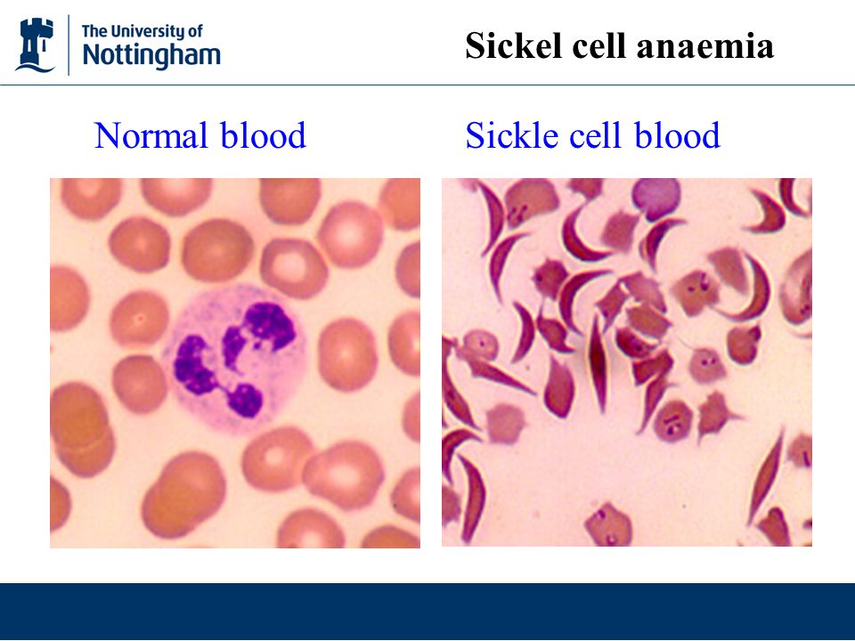 Sickel cell anaemia Normal blood Sickle cell blood