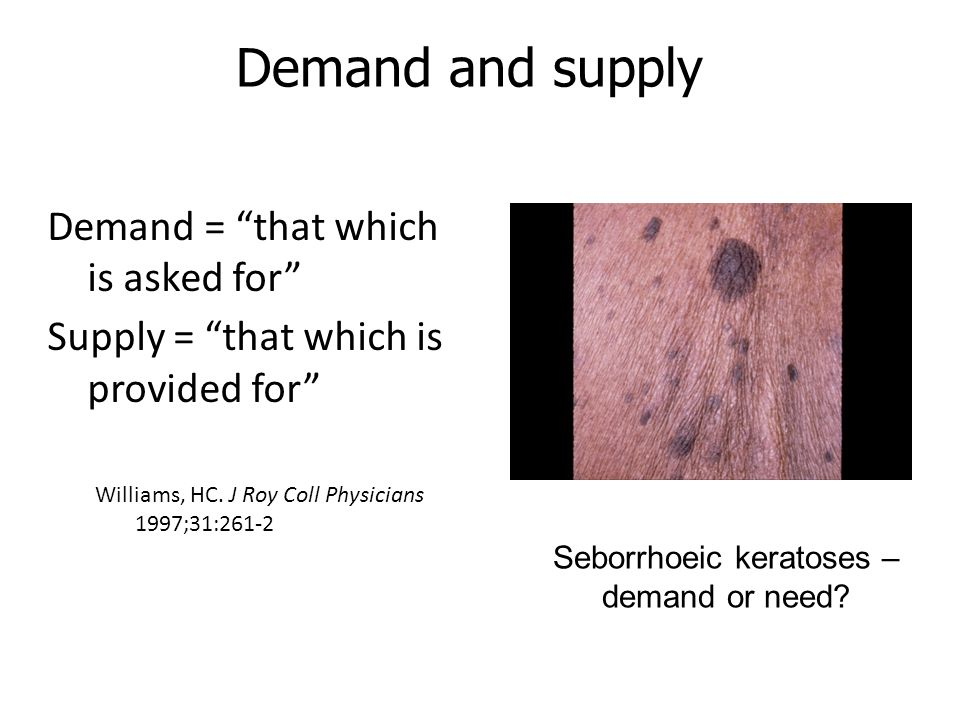 Seborrhoeic keratoses – demand or need