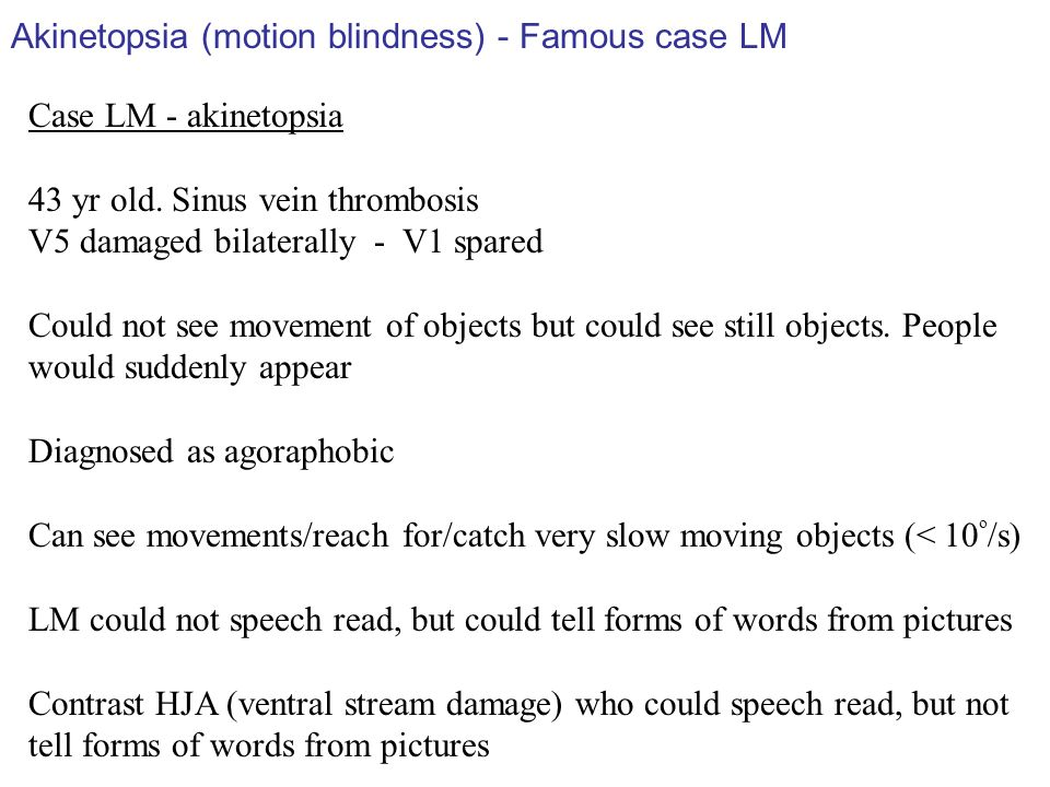 Akinetopsia (motion blindness) - Famous case LM