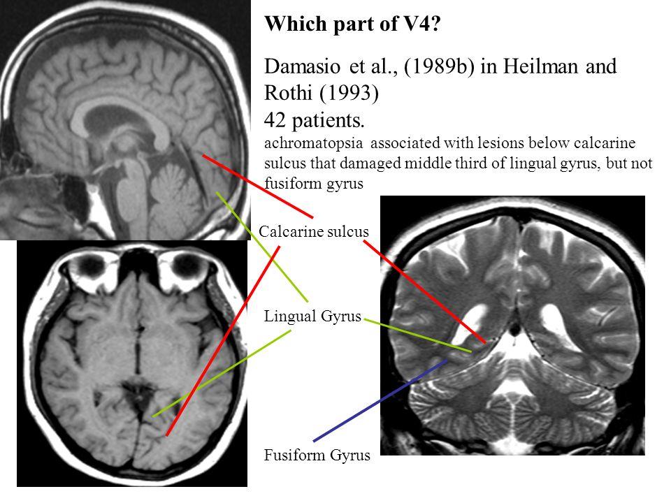 Damasio et al., (1989b) in Heilman and Rothi (1993) 42 patients.