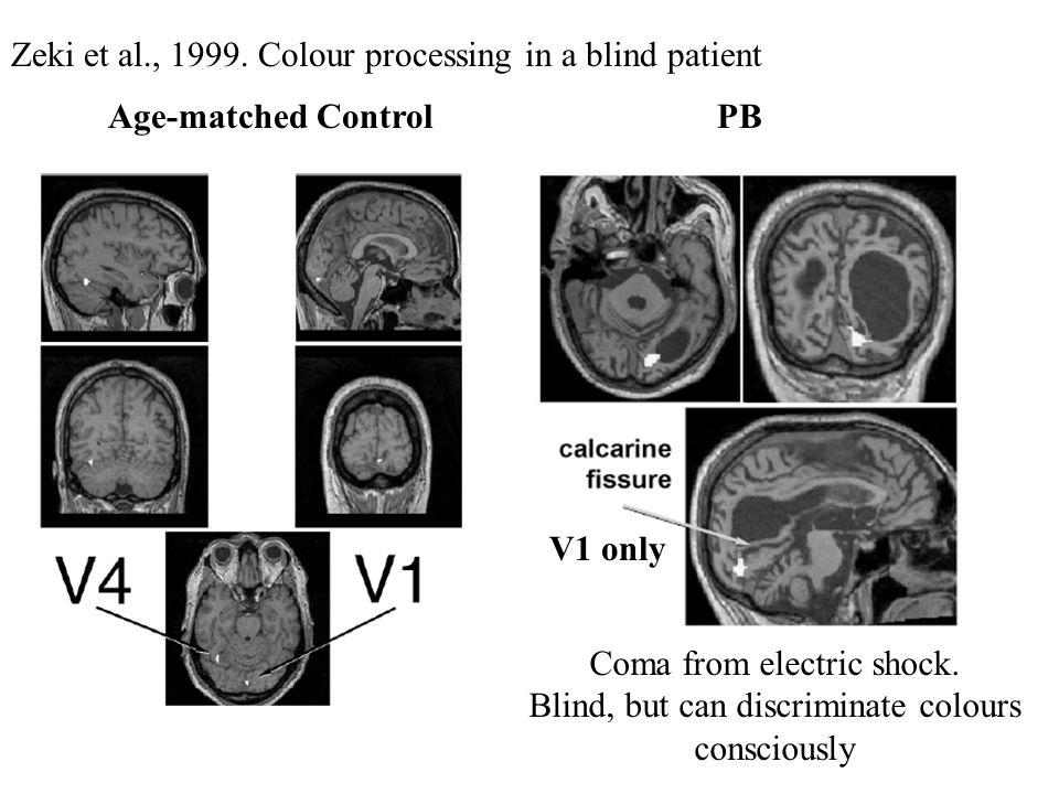 Zeki et al., 1999. Colour processing in a blind patient