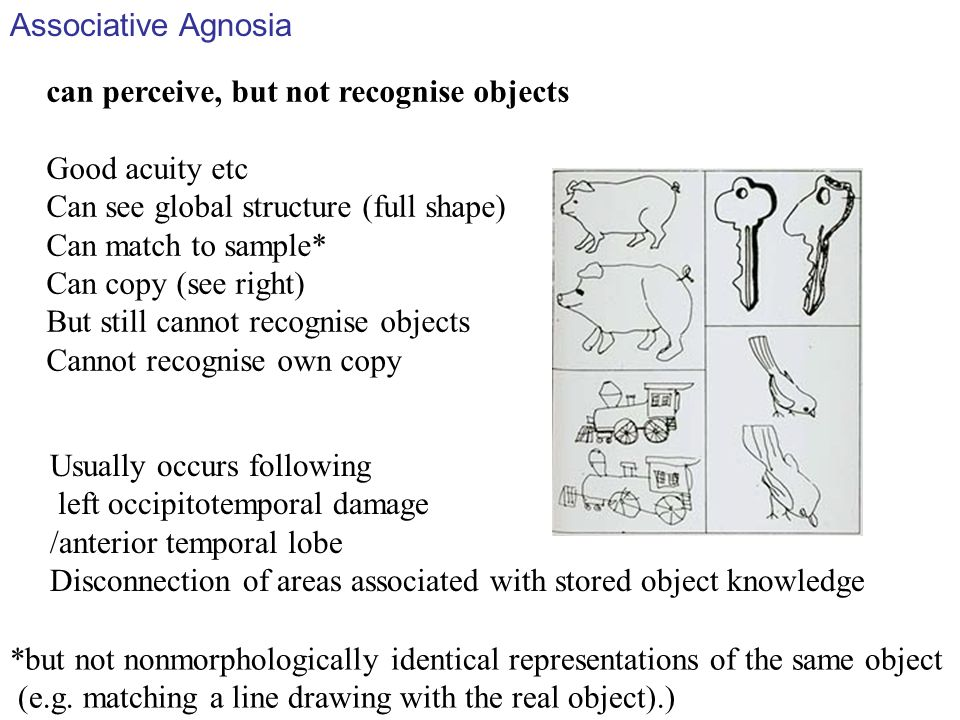 Associative Agnosia can perceive, but not recognise objects. Good acuity etc. Can see global structure (full shape)