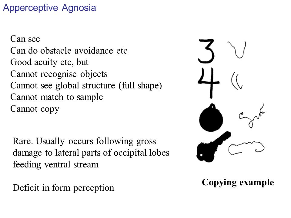 Apperceptive Agnosia Can see. Can do obstacle avoidance etc. Good acuity etc, but. Cannot recognise objects.