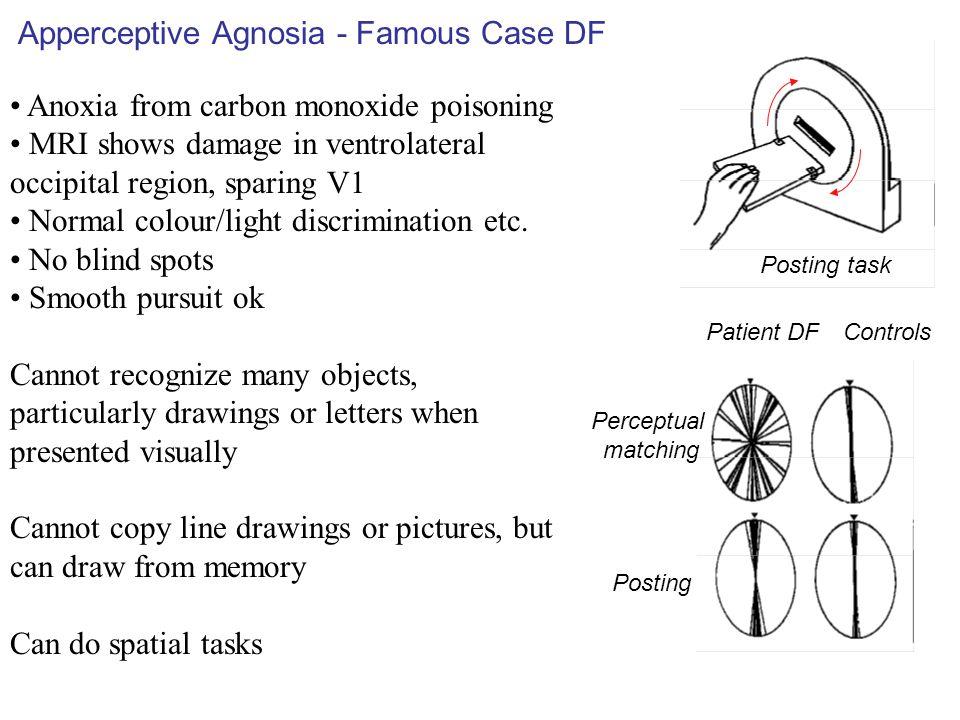 Apperceptive Agnosia - Famous Case DF