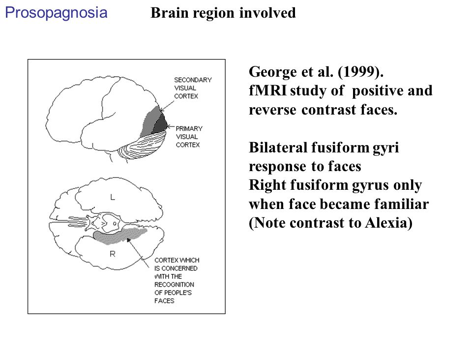 Prosopagnosia Brain region involved. George et al. (1999). fMRI study of positive and reverse contrast faces.