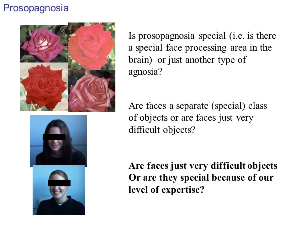 Prosopagnosia Is prosopagnosia special (i.e. is there a special face processing area in the brain) or just another type of agnosia